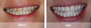 1 Front Upper Veneer and Zoom Whitening