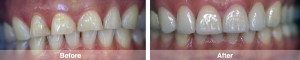 Full Upper Veneers 2